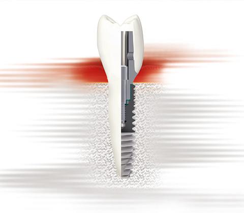 Implantologie_03